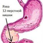 Болезни двенадцатиперстной кишки симптомы лечение – Заболевания двенадцатиперстной кишки: симптомы болезней, лечение, признаки
