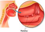 Полип в поджелудочной железе симптомы – Полипы в поджелудочной железе: симптомы и лечение патологии