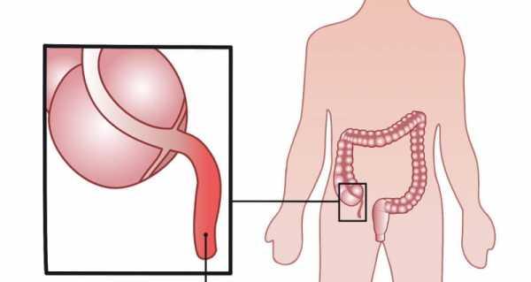 Диета После Лапароскопии Аппендицит.